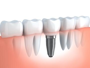 Dental Implants and Tooth Replacement in Aurora CO