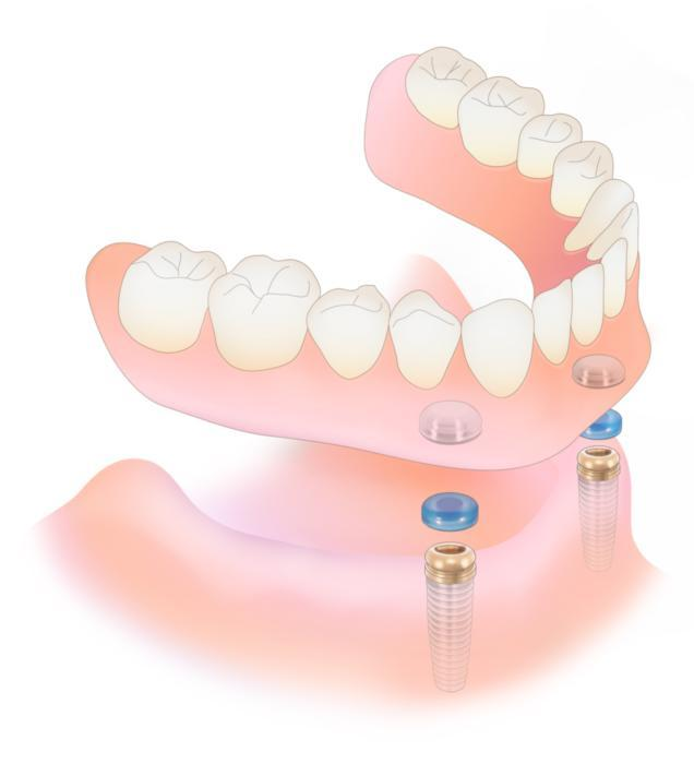 Full Dentures diagram | Centennial CO