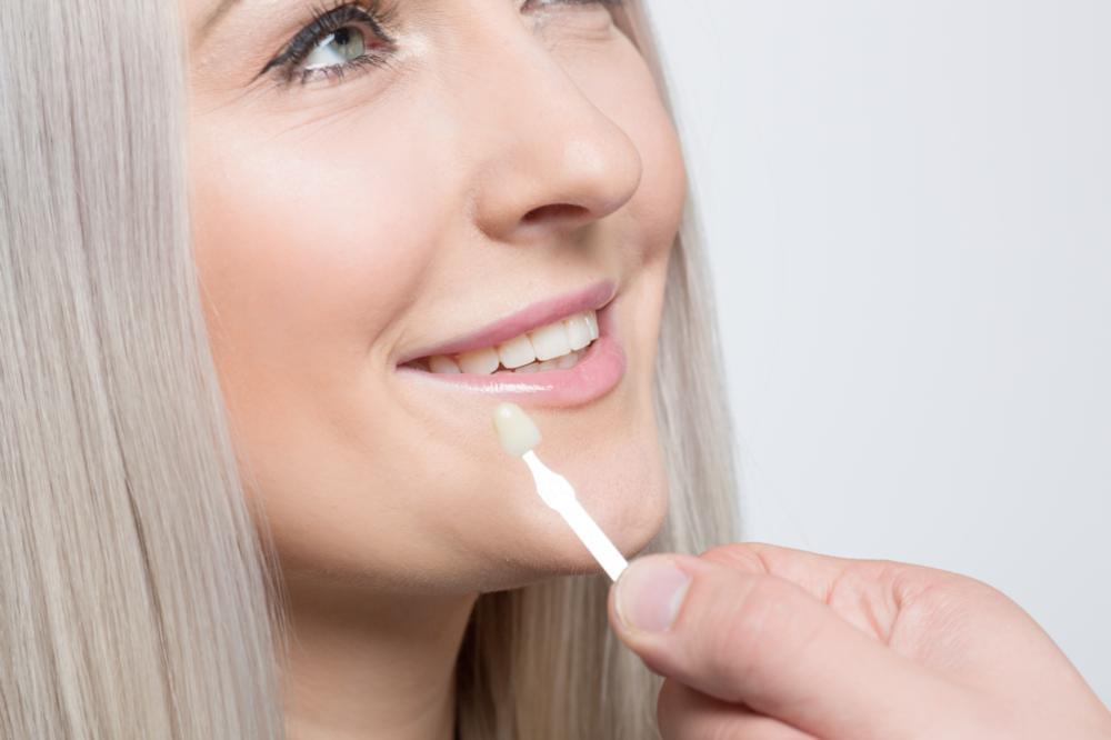 woman getting porcelain veneers | cosmetic dentist in aurora
