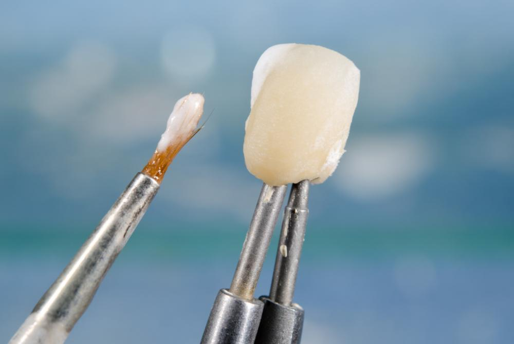 Tooth Replacement in Denver CO | Dental Implant Model