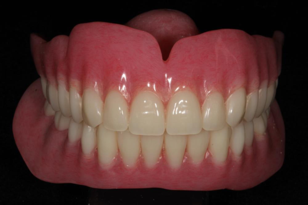 Dentures photo | Aurora CO
