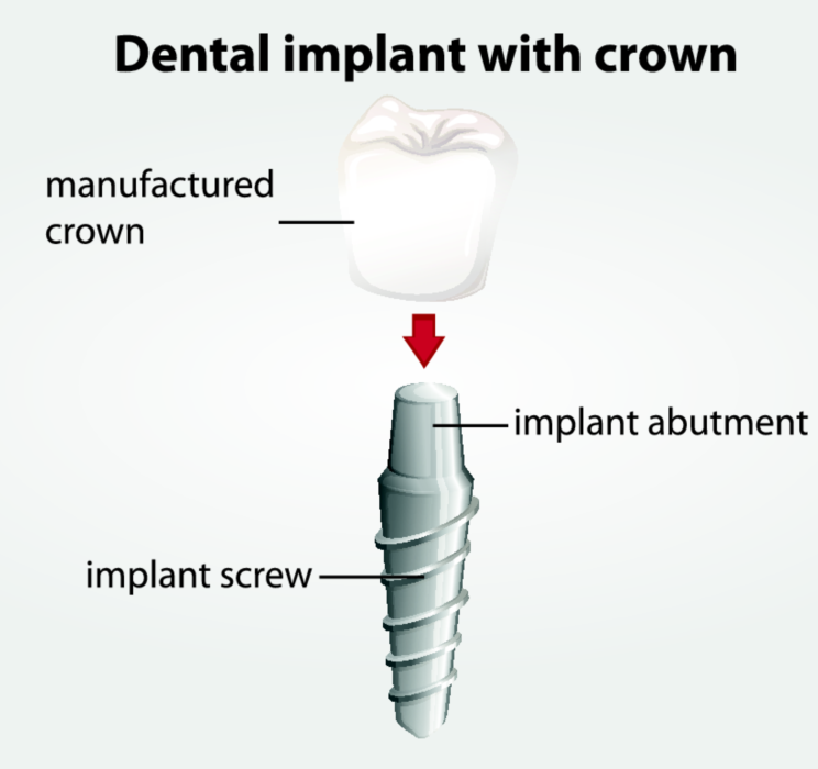 dental implants | centennial CO dentist