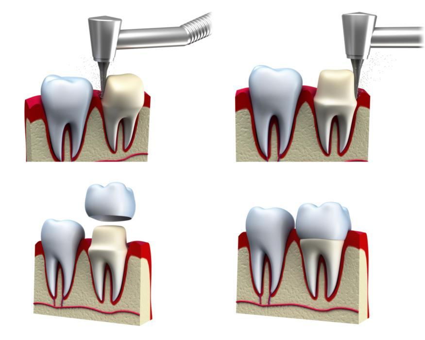 dental crowns | aurora co dentist