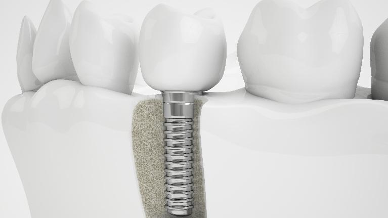 Dental Implants in Aurora CO | Implant Diagram