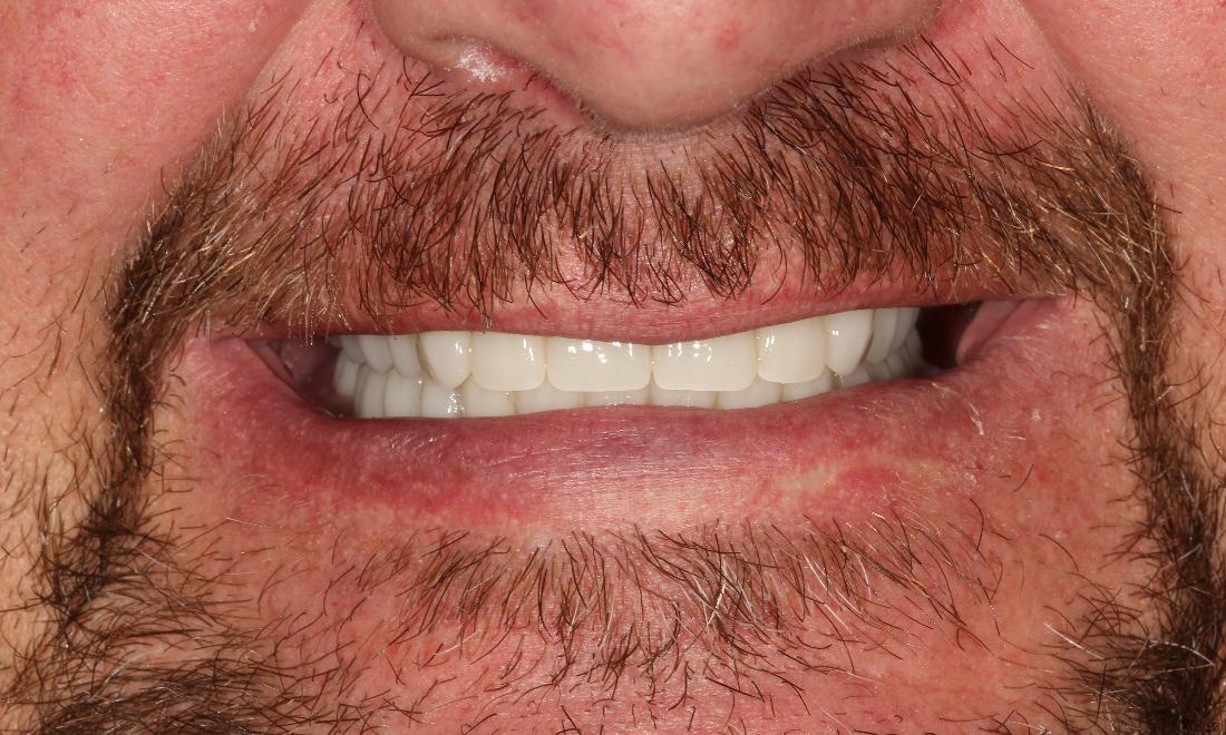 Immediate Dentures in Aurora CO | Tooth Replacement Before