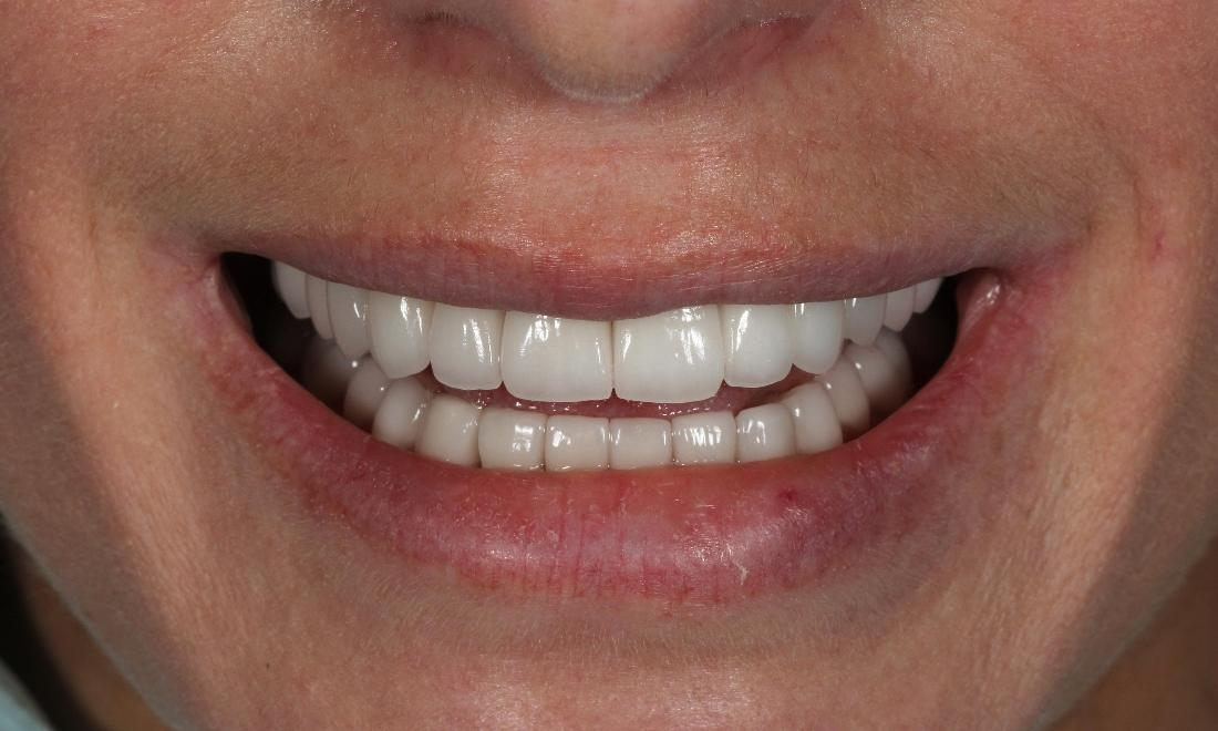 Full mouth rehabilitation / Smile makeover