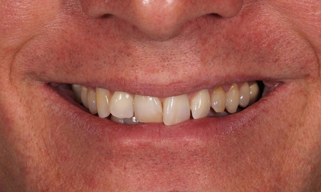 Veneers in Denver CO
