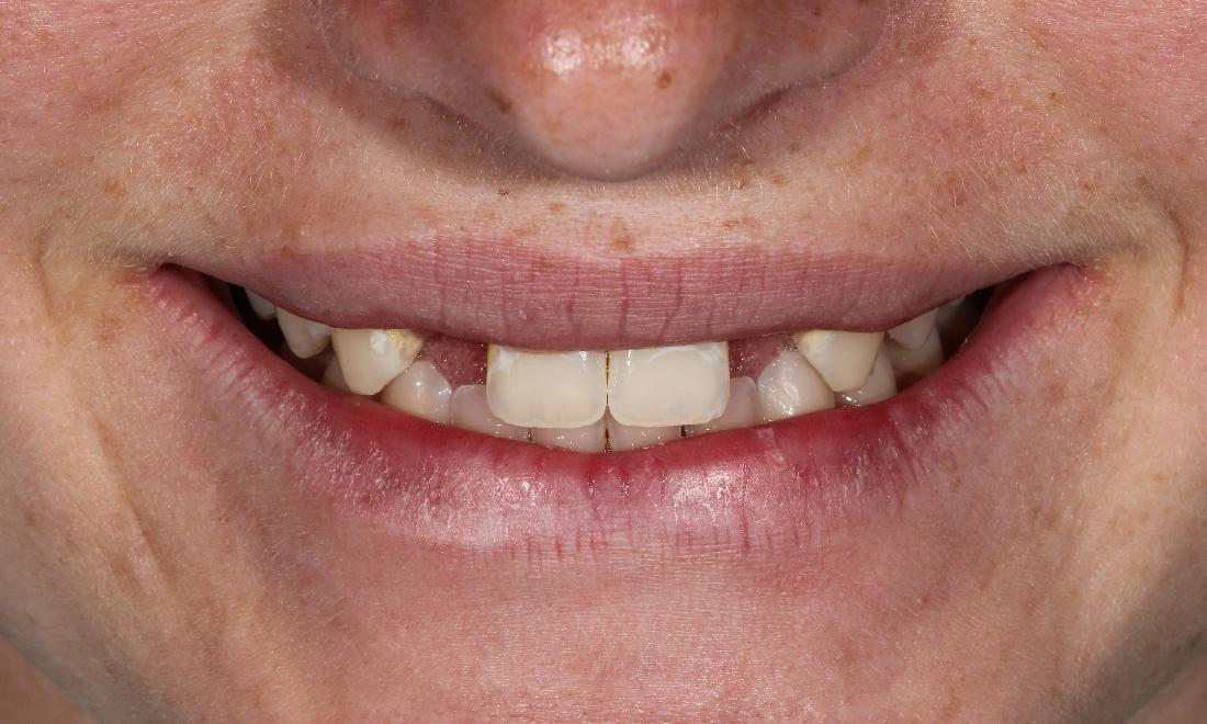 Tooth Replacement in Aurora | Dr. John Chen