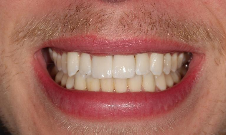 Implant-crown-and-veneer-After-Image