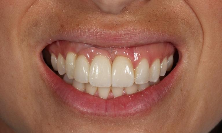 Anterior-implant-crowns-and-veneer-After-Image