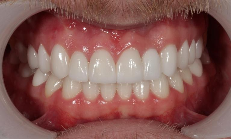 Full-mouth-rehabilitation-Smile-makeover-After-Image