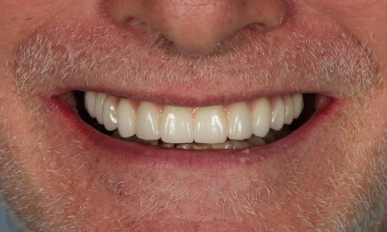 Layered-zirconia-reconstruction-on-implants-After-Image