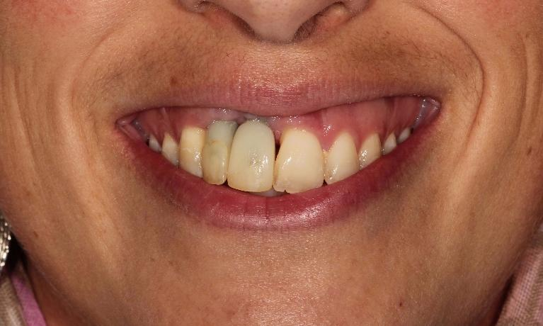 Anterior-implant-crowns-and-veneer-Before-Image