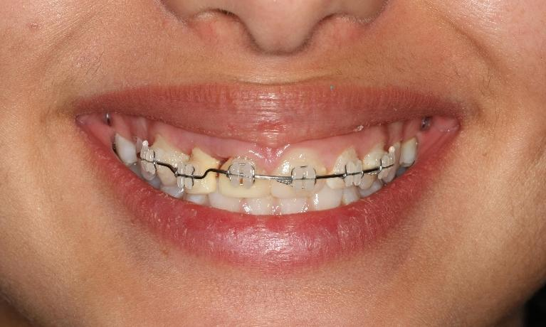 Full-mouth-rehabilitation-Before-Image