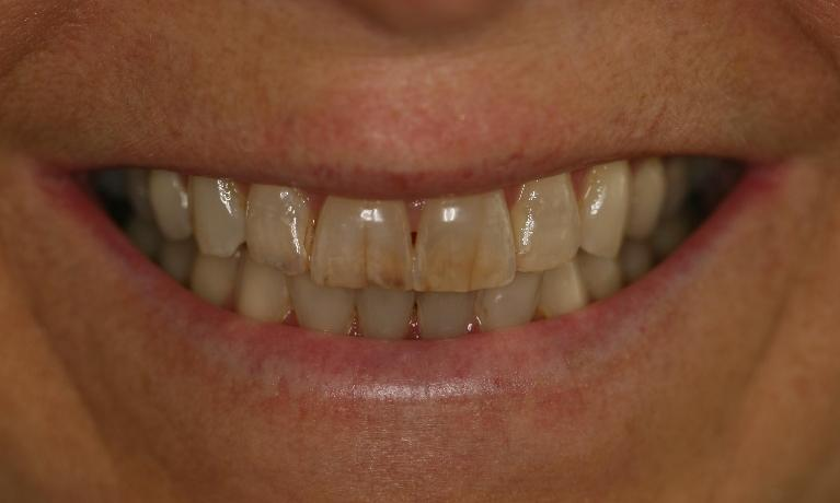 Full-mouth-rehabilitation-Smile-makeover-Before-Image