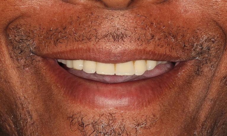 Hybrid Dentures In South Denver Aurora Dentist Hybrid