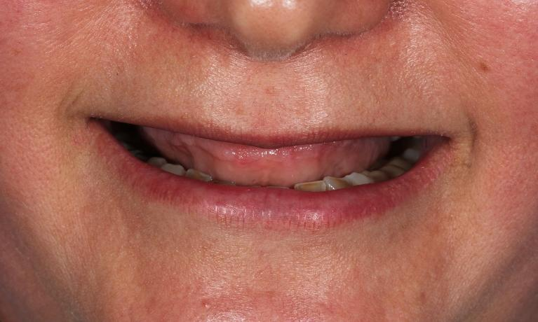 Layered-zirconia-reconstruction-on-implants-Before-Image