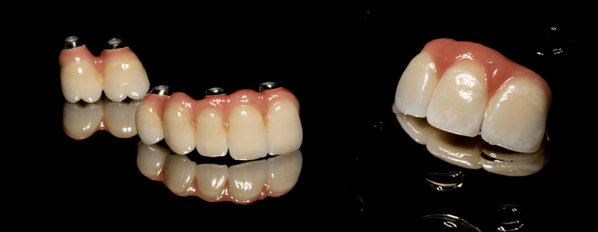 Uptown Comprehensive Dentistry and Prosthodontics | Dental Bridges